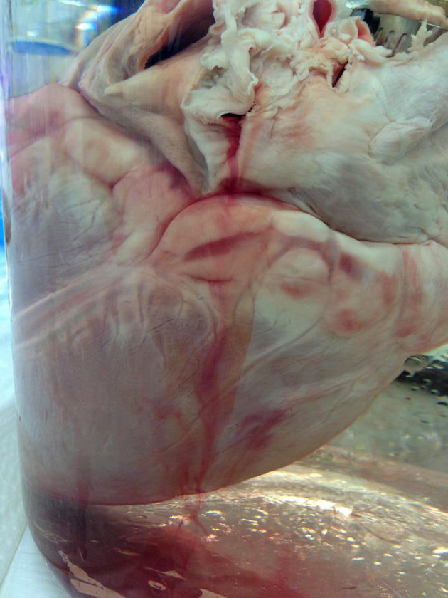 Residual blood leaking out of the heart during the initial perfusion steps, as we push fluids through the heart muscle